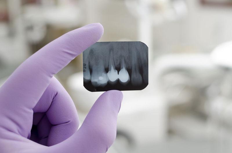 2018_12_27_P2_牙醫行銷走反主流,爭議聲量是否有助提高牙醫診所業績